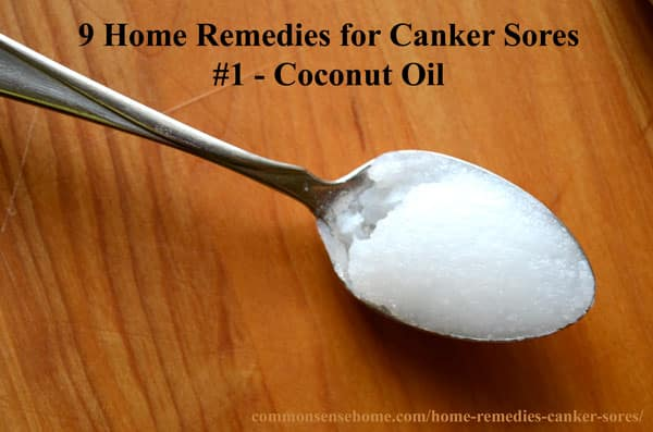 https://commonsensehome.com/wp-content/uploads/2010/01/canker-sore-remedy.jpg Canker Sore In Throat Remedy