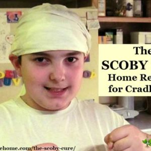 """Our experience using a kombucha scoby as a """"scoby cure"""" home remedy for my son's cradle cap, which we believe was caused by excessive chlorine exposure."""