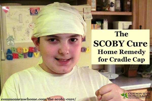 "Our experience using a kombucha scoby as a ""scoby cure"" home remedy for my son's cradle cap, which we believe was caused by excessive chlorine exposure."