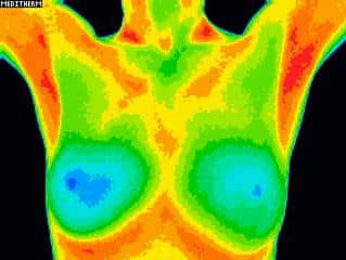 breast detox image