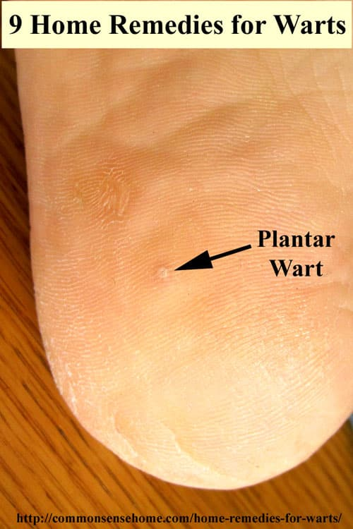 Home Remedies For Seed Warts On Feet