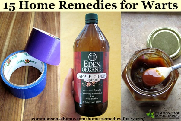 how to get rid of warts on feet home remedies