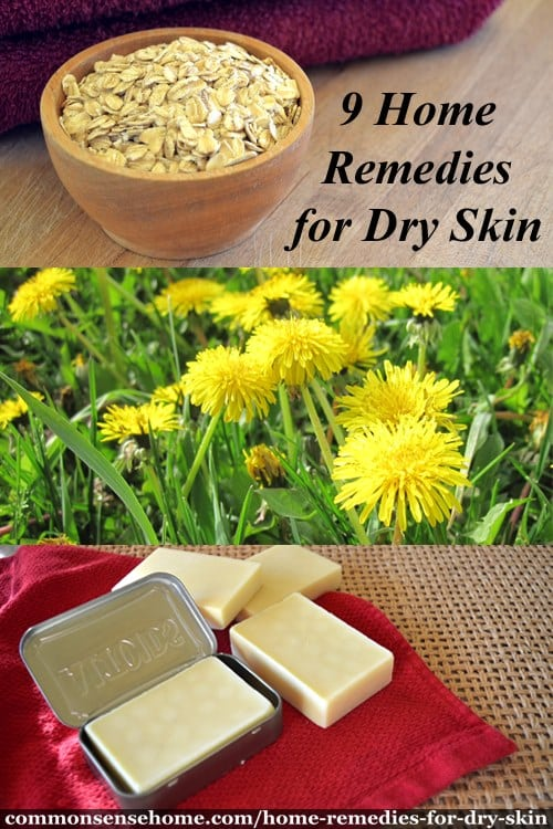 9 Home Remedies for Dry Skin - Soothe Dry and Flaking Skin
