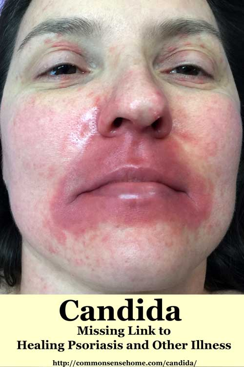 Candida - Missing Link to Healing Psoriasis and Other Illness