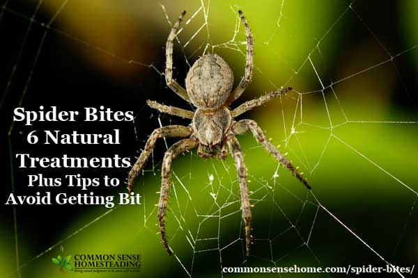 Spider Bites - 6 Natural Treatments Plus Tips to Avoid Getting Bit - Sooth the pain and itching of spider bites, and learn how to avoid them.