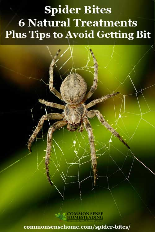 Natural Treatment For Spiders In House Getting Bite