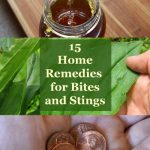15 Home Remedies for Bug Bites and Stings - use these items from around your home and yard to reduce pain, swelling and itching from bug bites and stings.