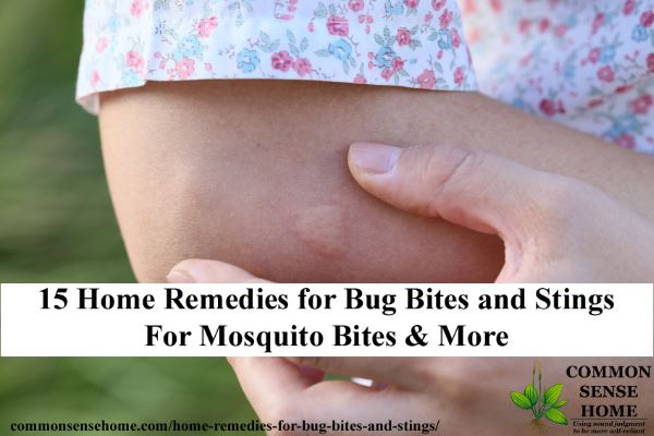 15 Home Remedies for Bug Bites and Stings - Ditch the itch from mosquito bites and more with these easy to use bite treatments.