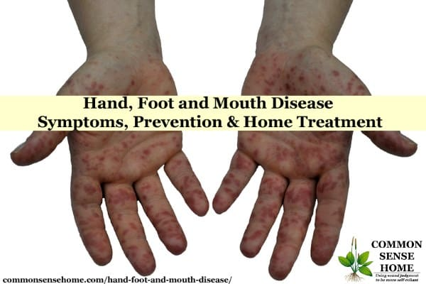 hfmd on hands