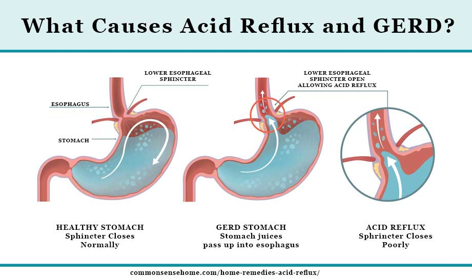Illustration Of The Cause Of Acid Reflux And Gerd