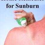aloe for sunburn relief on sunburned shoulder