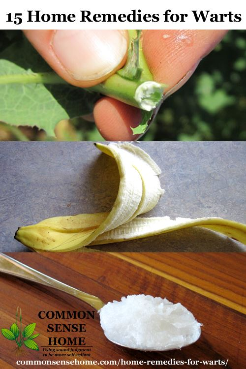 15 Home Remedies for Warts - Easy Home Wart Treatments