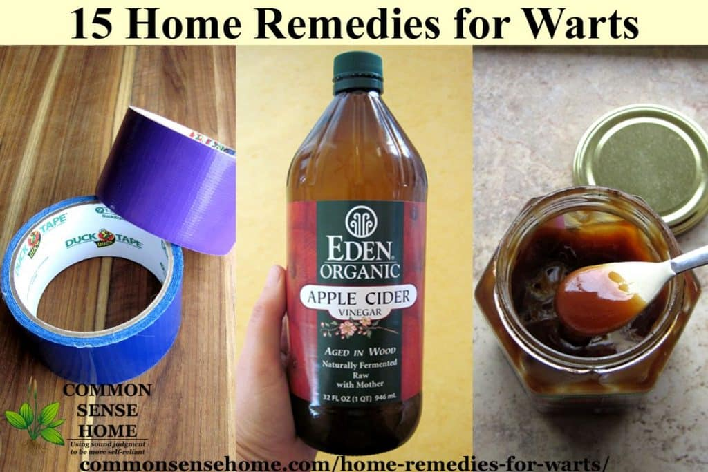 Collage of home remedies for warts