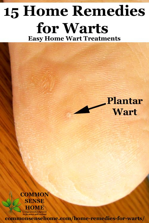 Planter Wart Treatment 15 Home Remedies For Warts Easy