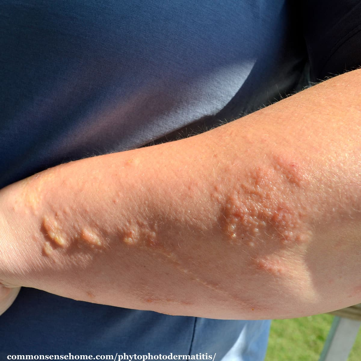 phytophtodermatitis on arm