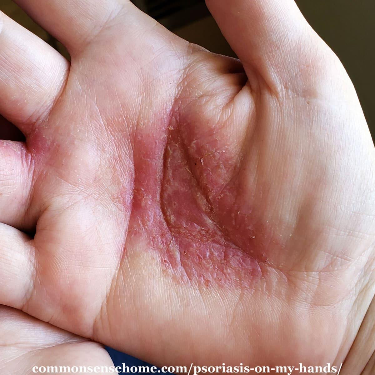 pustular psoriasis on hand