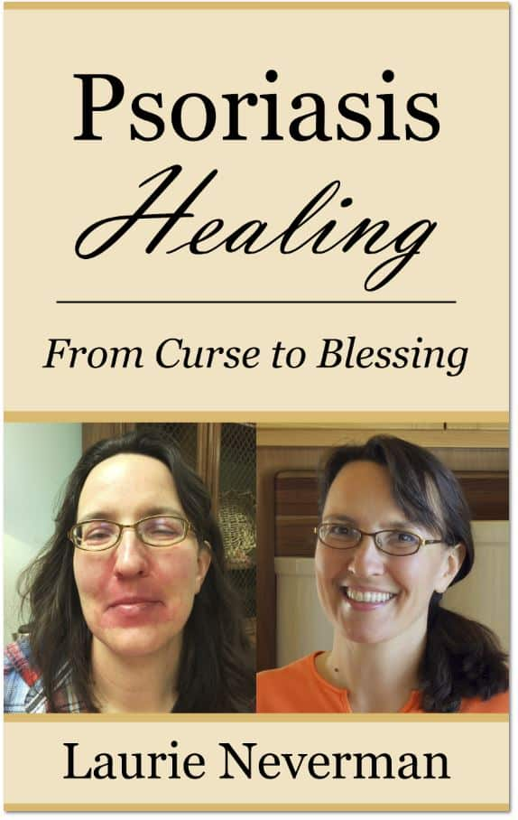 """Psoriasis Healing: From Curse to Blessing"" book cover"